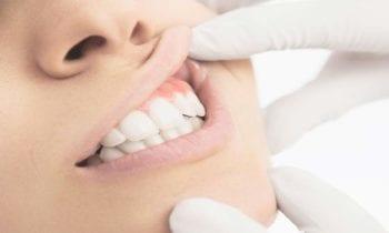 Periodontal - Smileperfectors
