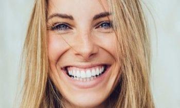 Smile - Smileperfectors