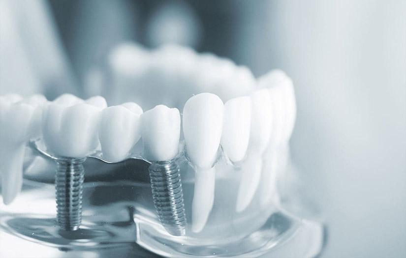 Dental Implants Tysons Corner