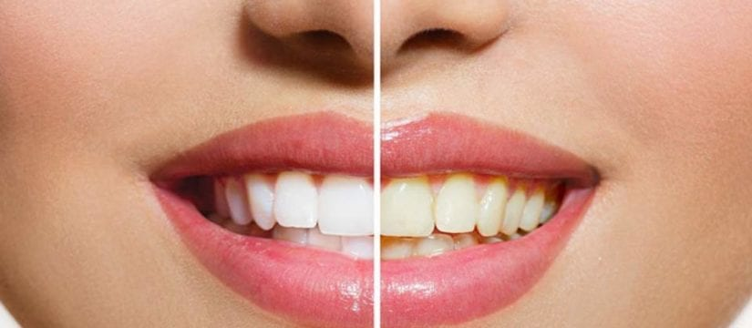 Teeth Whitening at Home - Smileperfectors