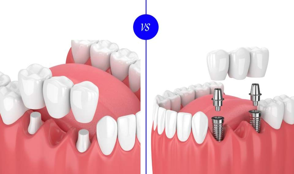 Dental Implants or Dental Bridges - Smileperfectors