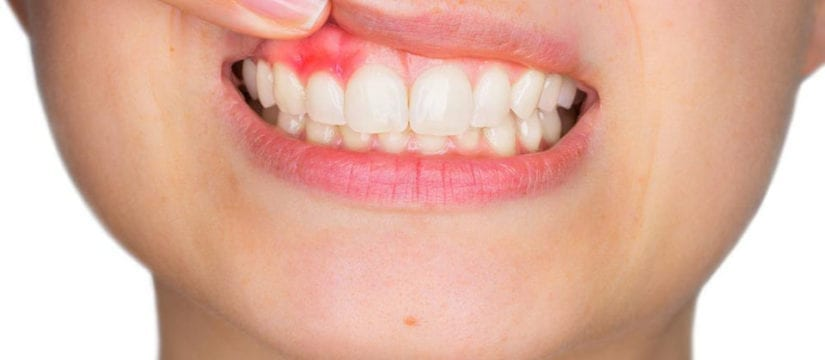 Gum Diseases - Smileperfectors
