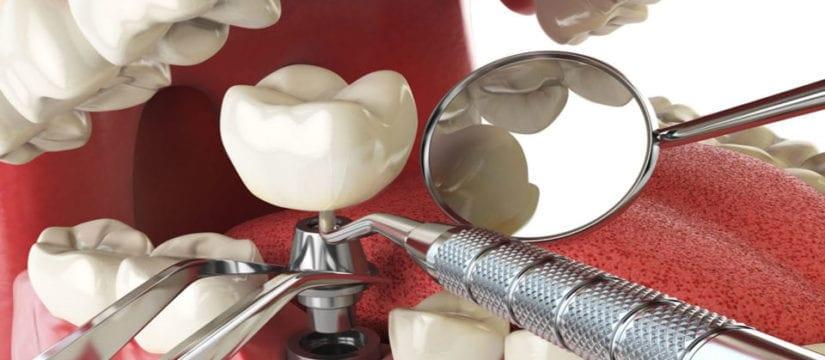 dental implant - Smileperfectors