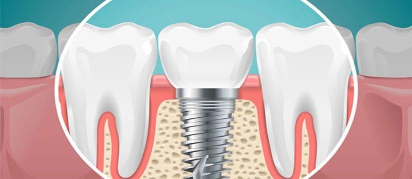 dental implants - Smileperfectors