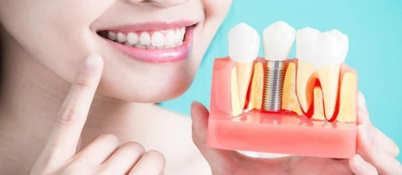dental Implants - SmilePerfectors