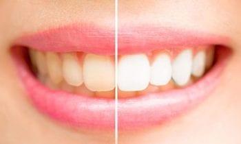 teeth whitening tysons corner-Smileperfectors