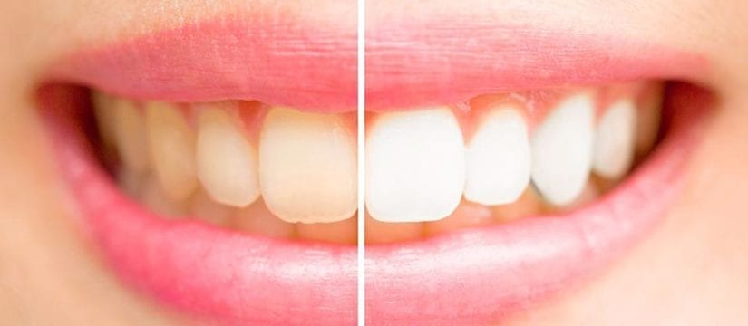teeth whitening tysons corner-Smileperfectors