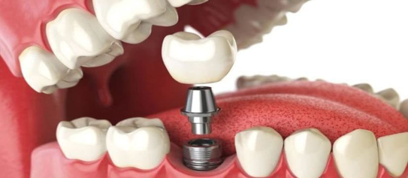 Dental Implants-SmilePerfectors