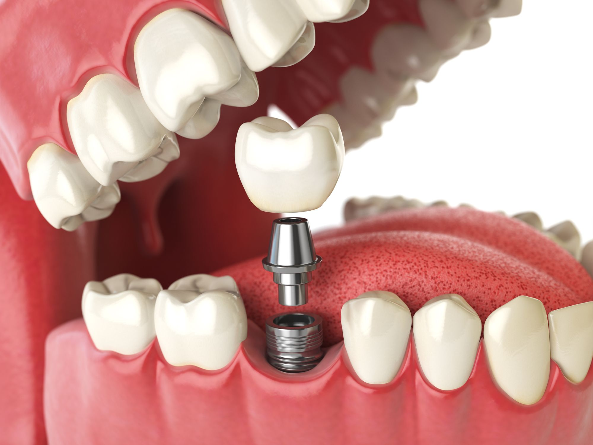 dental implants tysons corner