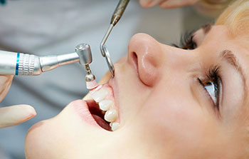 Dental Cleaning Tysons Corner