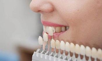 Dental Veneers Tysons Corner