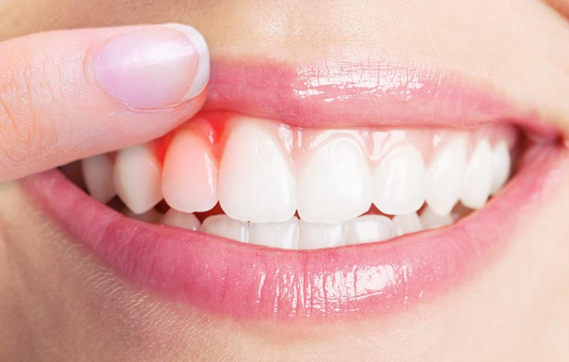 Woman Showing Her Periodontist