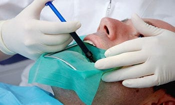 Root Canal Treatment at Dentistry