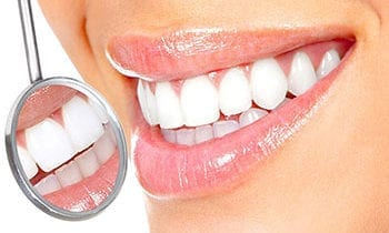 Whitened and brilliant teeth