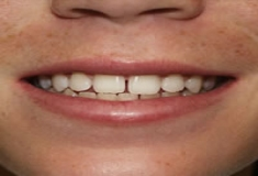 After Of Whitening