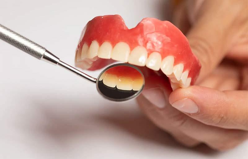 Gum health check up