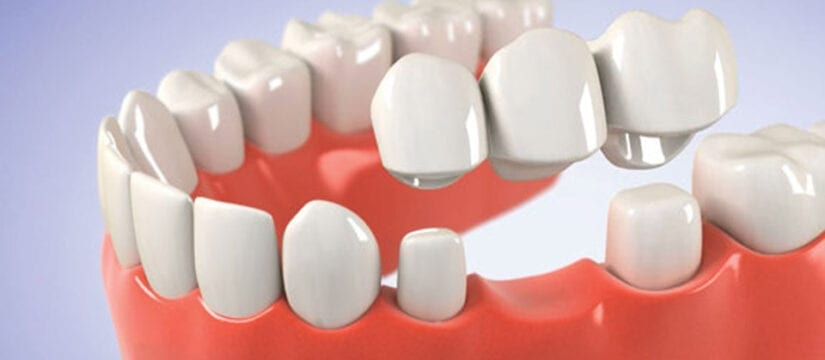 crown and Bridges - smileperfectors