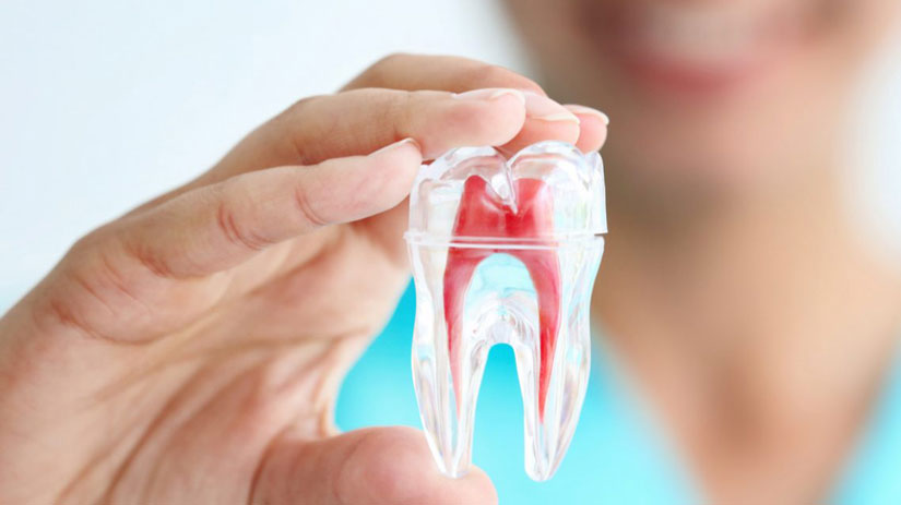 Root canal pain remedies and treatments