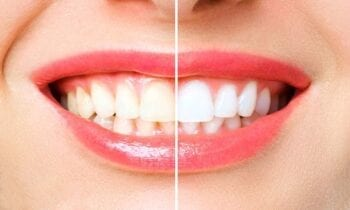 Teeth Whitening Remedies At Home - smileperfectors