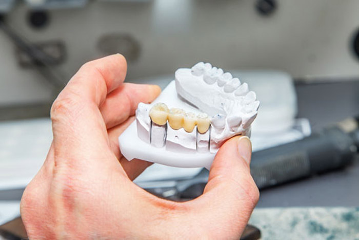 Temporary tooth crown durability - smileperfectors
