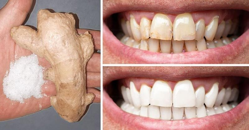 White Teeth with Ginger - smileperfectors