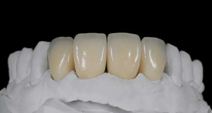 Crowns on Front Teeth - smileperfectors