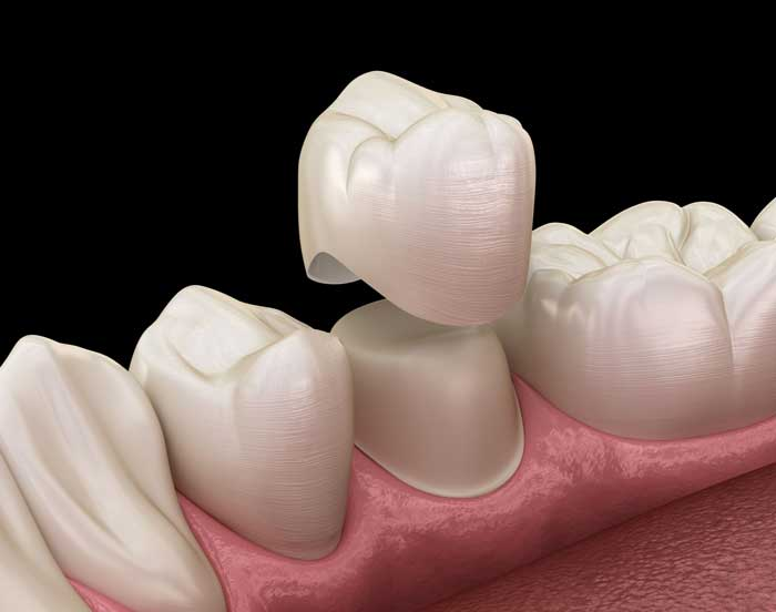 Porcelain crown - smileperfectors