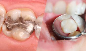 dental fillings in tysons corner
