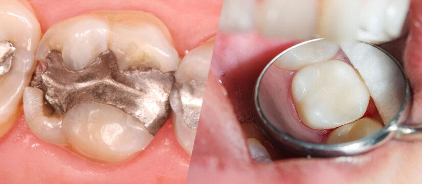 dental fillings in tysons corner, Smile Perfectors