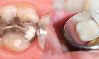 Dental Fillings Tysons Corner