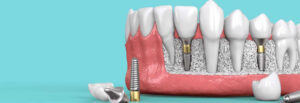 Family Dental Care, Smile Perfectors