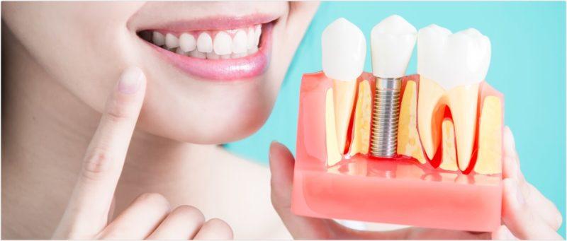 dental implants tysons corner, Smile Perfectors