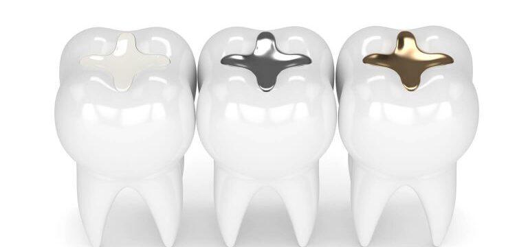 dental fillings tysons corner, Smile Perfectors
