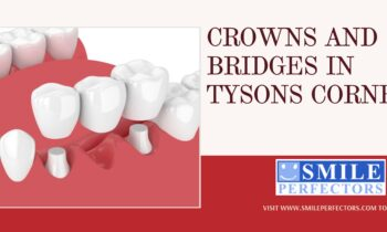 Crowns and Bridges Tysons Corner