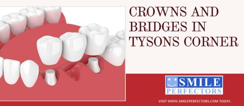 Crowns and Bridges Tysons Corner, Smile Perfectors